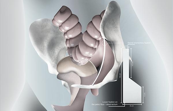 ایمپلنت تمام بیولوژیک کلاژنی برای ترمیم افتادگی رکتال