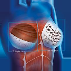 اسلولار درمال ماتریکس برای بازسازی پستان