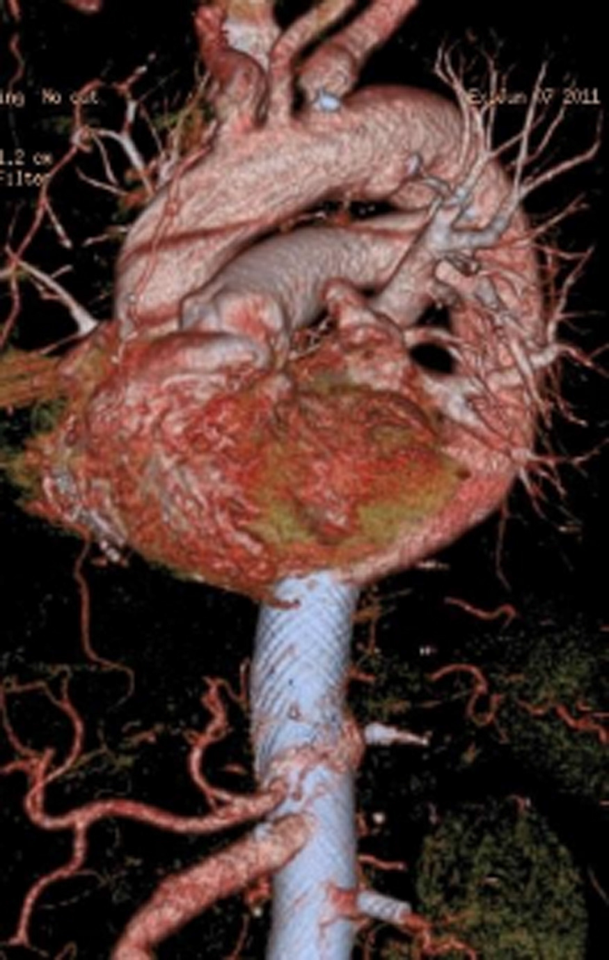 استنت های MFM روش نوین برای درمان آنوریسم های سینه ای-شکمی
