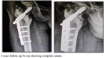 درمان شکستگی اینترتروکانتریک با استفاده از ایمپلنت ارتوپدی DHS