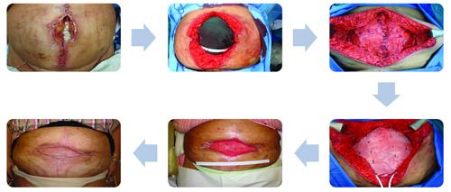 رگ زایی مش بیولوژیک پس از قرار گرفتن در معرض زخمهای نکروز باز در فتق پیچیده