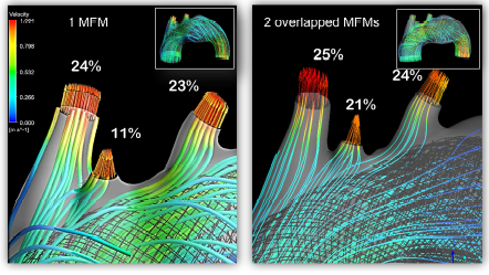 استفاده از استنت MFM برای درمان آنوریسم قوس آئورت و آنوریسم پیچیده سینه ای - شکمی