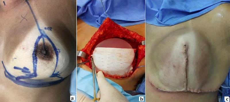 ماستکتومی با کاهش پوست و بازسازی پری پکتورال پستان پتوتیک بزرگ با استفاده از اسلولار درمال ماتریکس