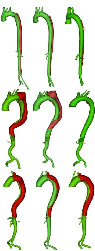 تغییر شکل آئورت مبتلا به دایسکشن نوع B پس از قراردهی استنت آنوریسم MFM