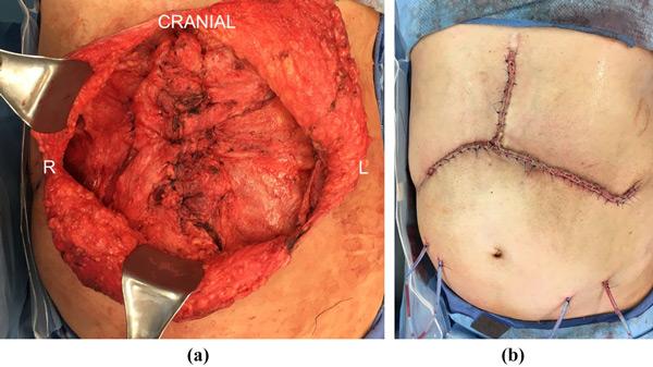 نتایج طولانی مدت بازسازی دیواره ابدومینال شکم با استفاده از مش بیولوژیک در پیوند کبد ، کلیه و روده کوچک