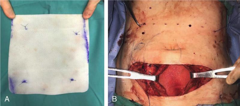 بازسازی دیواره ابدومینال کمپلکس با استفاده از بخیه مش پلی پروپیلن روی مش بیولوژیک