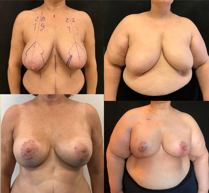 ماستکتومی پستان بزرگ دارای پتوز (افتادگی) با کاهش پوست و به کارگیری اسلولار درمال ماتریکس در روش روش پری پکتورال