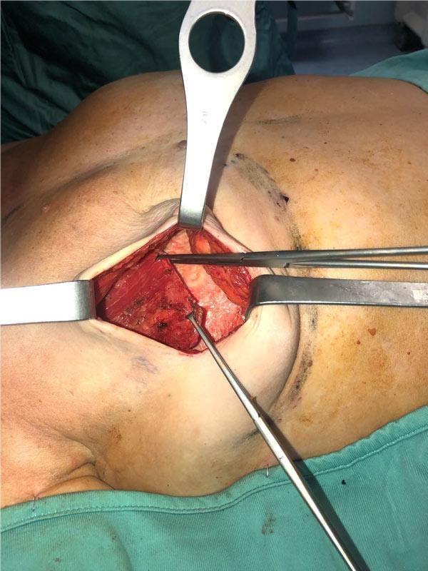 بازسازی تأخیری (Delayed) پستان به روش پری پکتورال