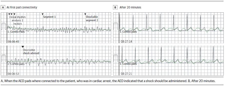تشخیص بیماری پس از احیا بیماران به کمک دستگاه شوک خودکار