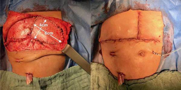 نتیجه بعد از پیوند کبد کودکان برای بسته شدن مرحله ای دیواره ابدومینال با استفاده از مش بیولوژیکی