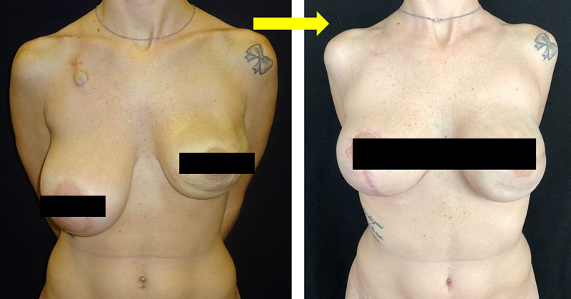 بازسازی تاخیری پری پکتورال پستان به کمک اسلولار درمال ماتریکس