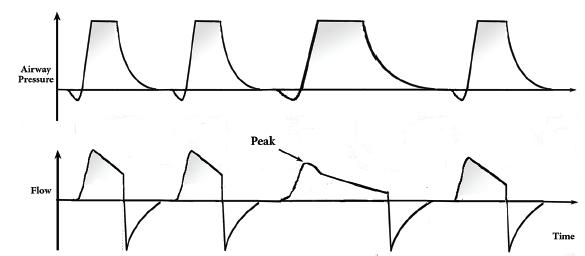 بررسی هماهنگی ریتم تنفسی در بیماران متصل به دستگاه ونتیلاتور برای تنفس کمکی