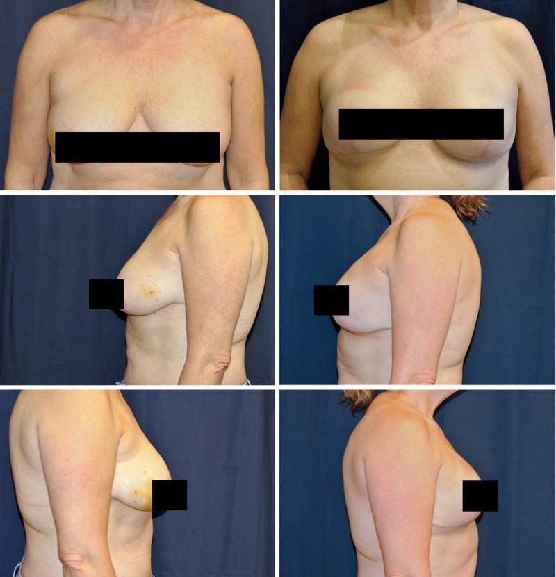 بازسازی یک مرحله ای پستان به کمک پروتز و اسلولار درمال ماتریکس به همراه ماستوپکسی
