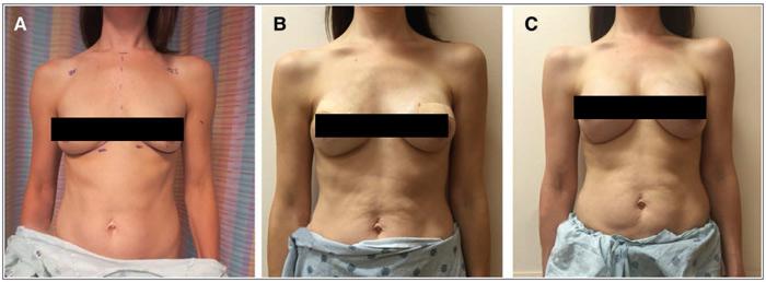 مقایسه قرار دادن تیشو اکسپندر روی عضله پکتورالیس یا زیر عضله