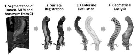 آنالیز تصاویر پزشکی برای اندازه گیری ابعاد آنوریسم آئورت سینه ای- شکمی درمان شده با استنت MFM