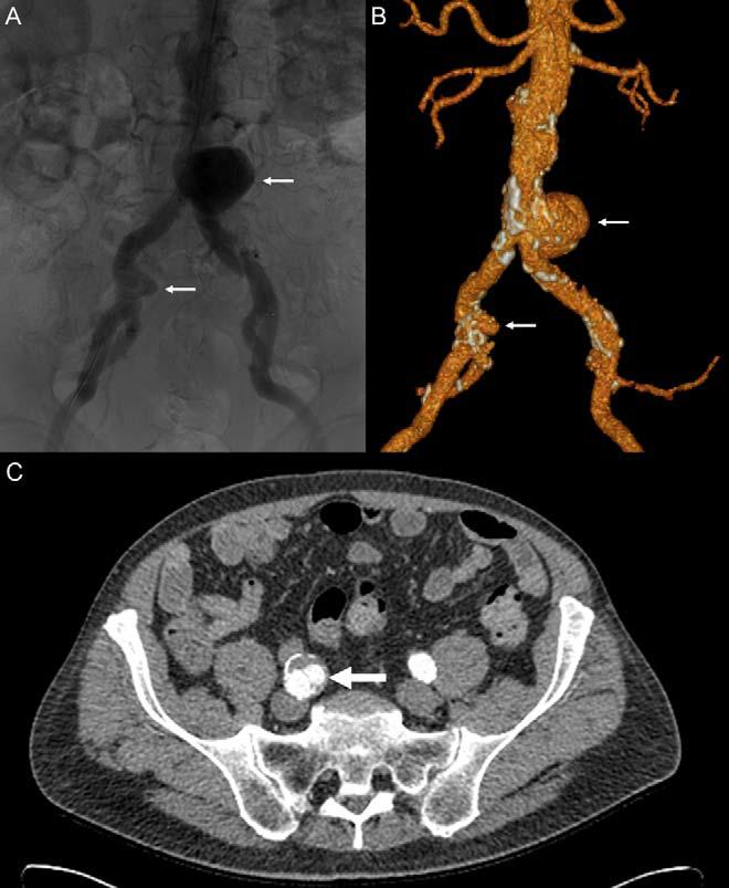 درمان بیمار مبتلا به آنوریسم ترکیبی آئورت شکمی و شریان ایلیاک با استفاده از استنت MFM