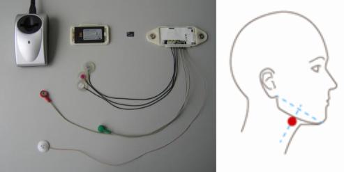 سیستم تشخیص ضربان و سنسور تشخیص نویز