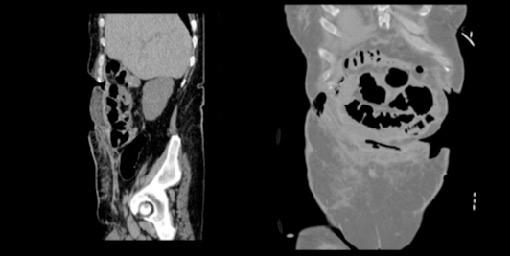 استفاده از ماتریکس کلاژنی خوکی در بیمار مبتلا به فیستول گوارشی