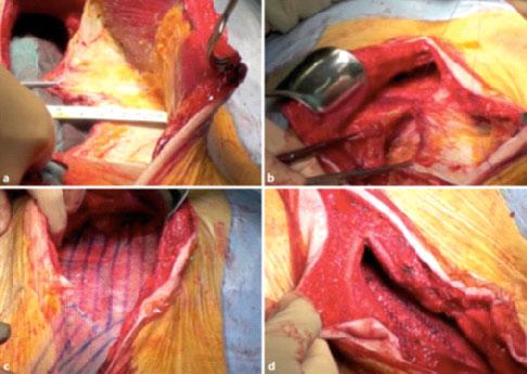 استفاده از مش کلاژنی در موارد پیشگیری از فتق شکمی