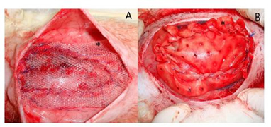 مقایسه درمان فتق دیواره ی شکمی با استفاده از بخیه، مش های پلی پروپیلن و مش های کلاژنی