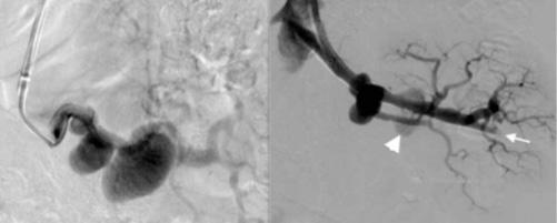 استفاده از استنت آنوریسم در آنوریسم ساکولار شریان رنال در کلیه