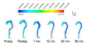 استفاده از استنت آنوریسم و تغییر شکل آئورت پس از درمان اندووسکولار آئورت