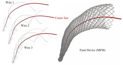 بهبود عملکرد ارگان ها در دیسکشن نوع B آئورت پس از استفاده از استنت آنوریسم MFM