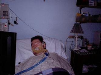 استفاده از ونتیلاتور برای جلوگیری از کاهش وزن بیماران مبتلا به دیستروفی عضلانی دوشن