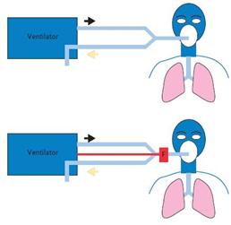 انتخاب ونتیلاتور مناسب برای ونتیلاسیون خانگی - مدار تنفسی دو شاخه ای