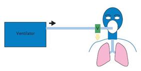 انتخاب ونتیلاتور مناسب برای ونتیلاسیون خانگی - مدار تنفسی تک شاخه ای